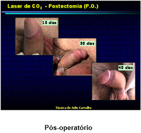 laser-urologia2